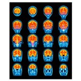 Mri Framed Prints